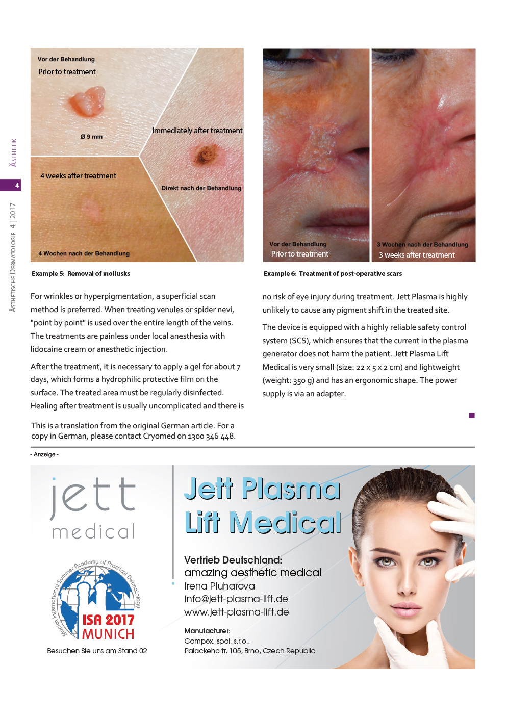 Jett Plasma Asthetische Dermatologie April2017 English 3