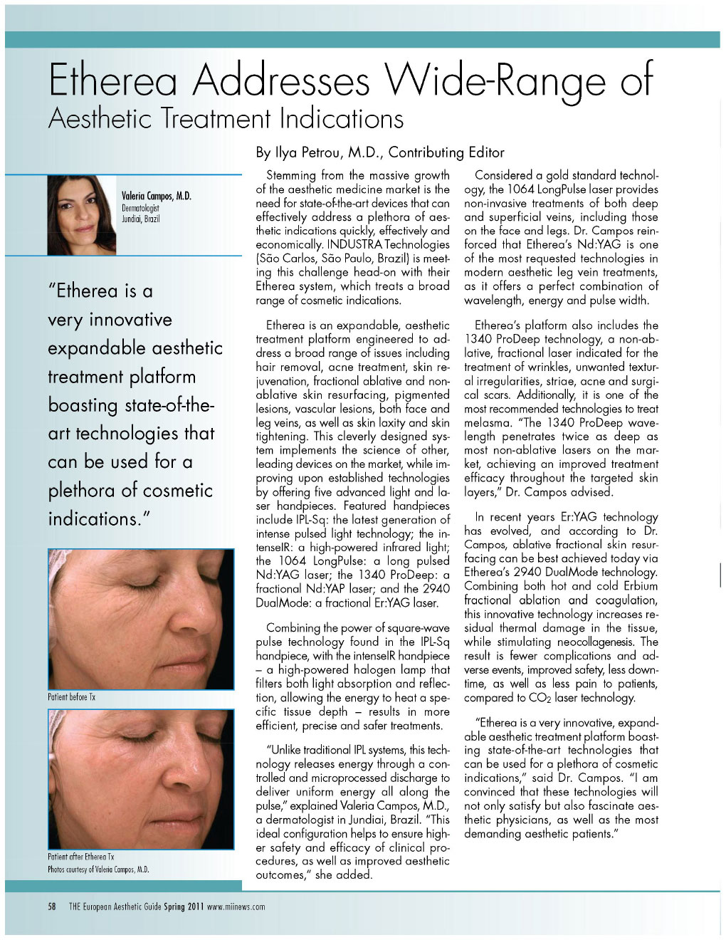 etherea® addresses wide range of aesthetic treatment indications