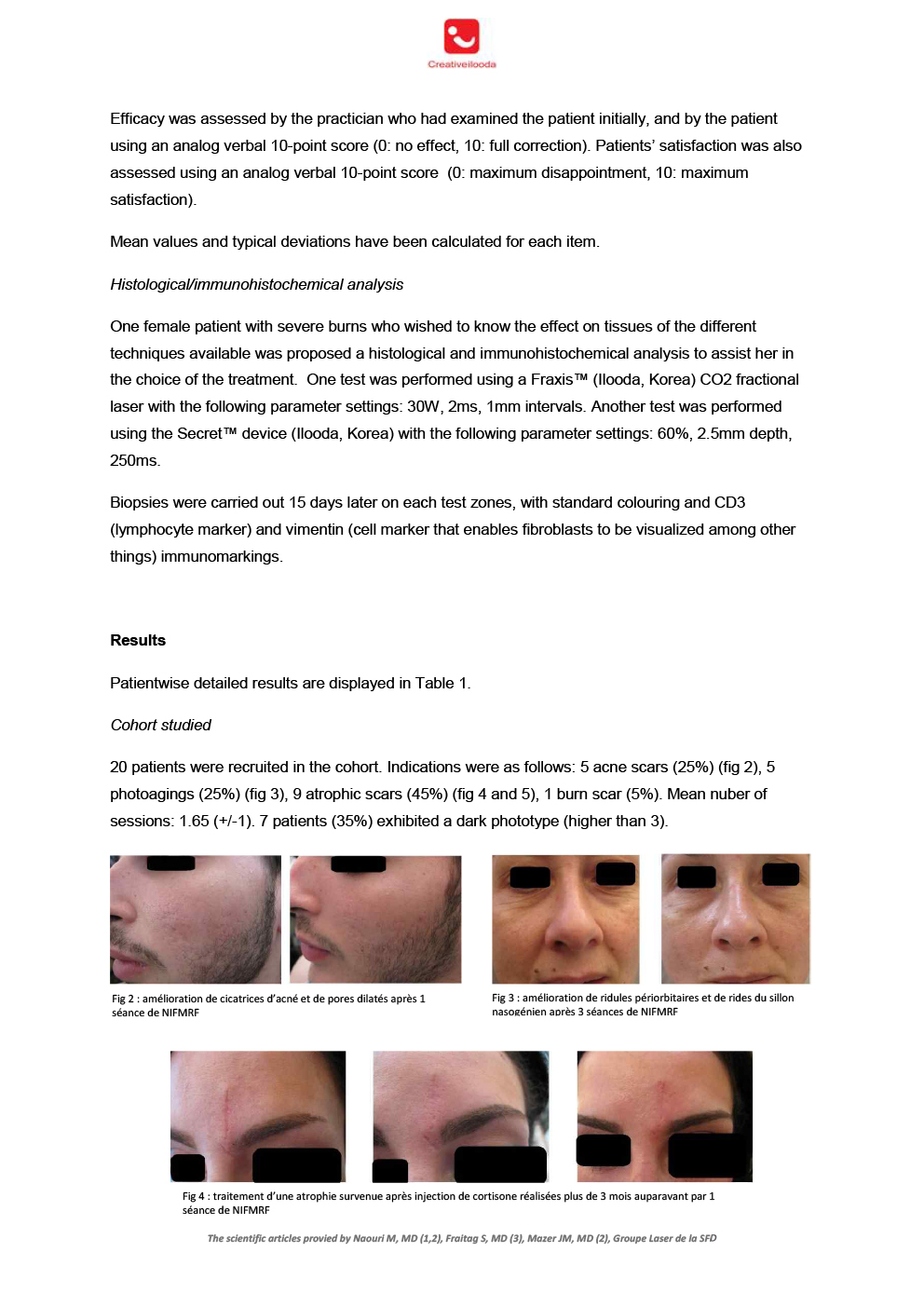 r2 Non insulated microneedle radiofrequency for the treatment of scars and photoageing by Dr. Naouri 5